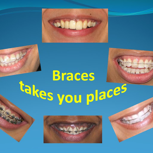 Who is Braces Places?