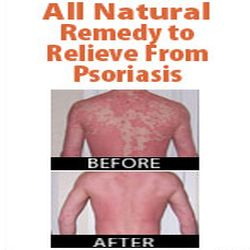 Who is How To Cure Psoriasis Permanently?